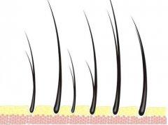头发做亲子鉴定准确吗?